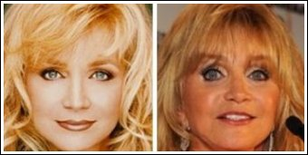 1-1-barbara-mandrell