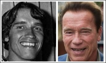 1-arnold